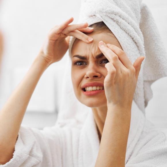Акнето и стресът
